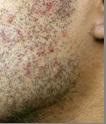 irriterad hud efter rakning