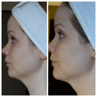 Dr Perricone inlägg 3, bild 3 Profil
