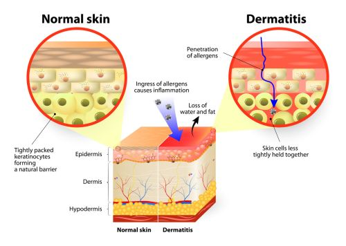 39703452 - skin showing changes due to dermatitis. labeled