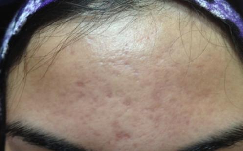 Microneedling vid acne bild efter1