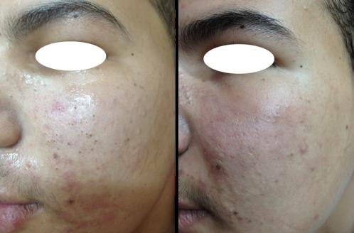 Microneedling vid acne bild efter2